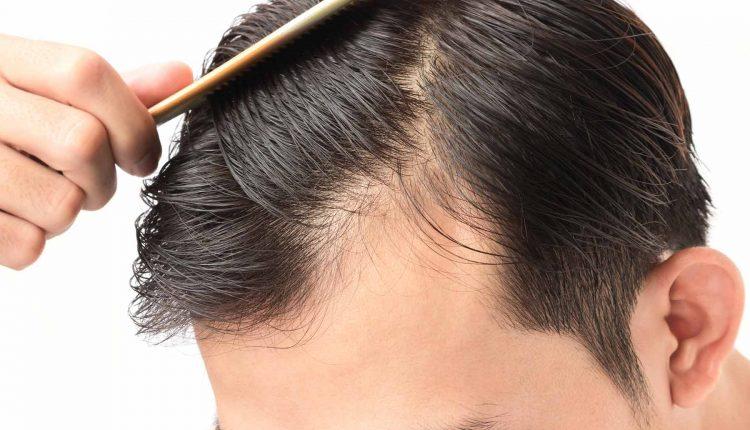 Hair Loss and Thinning