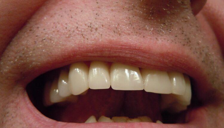 Choosing Dental Crowns
